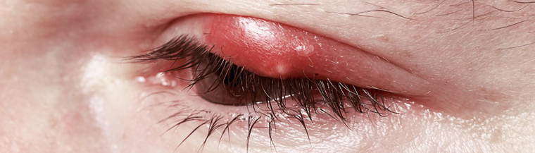 Blepharitis is inflammation of the eyelids and is commonly caused by a bacterial infection.