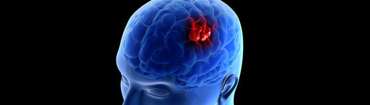 A brain tumour is a lump of abnormal cells growing inside your brain.