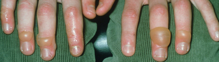 Chilblains usually affect extremities such as toes, fingers, nose and earlobes.