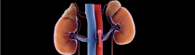 Congenital adrenal hyperplasia, or CAH, affects the adrenal glands.