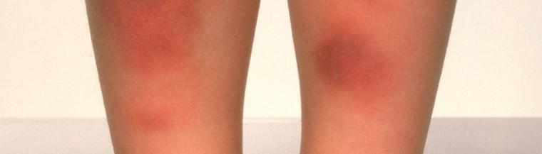 Erythema nodosum shows as a lumpy red rash, usually on the lower legs.