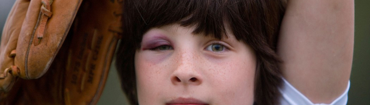 Boy with black eye.