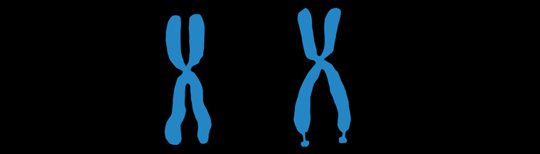 Illustration comparing a normal X chromosome (left) to a deformed X chromosome (right) associated with fragile X syndrome.