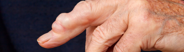 A ganglion cyst looks like a smooth lump under the skin.