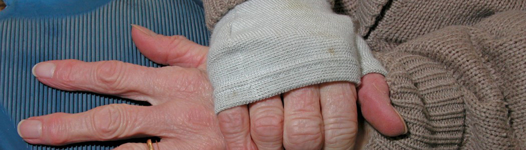 Elderly living in poorly heated homes are vulnerable to hypothermia.