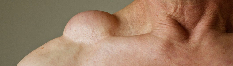 The shoulder and neck are common sites for lipomas to occur.