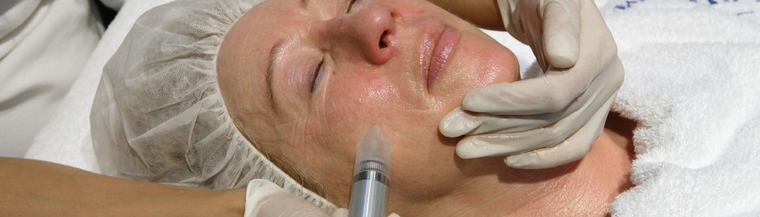 Microdermabrasion procedure