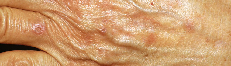 Discolouration and scarring of the skin are common symptoms of porphyria.