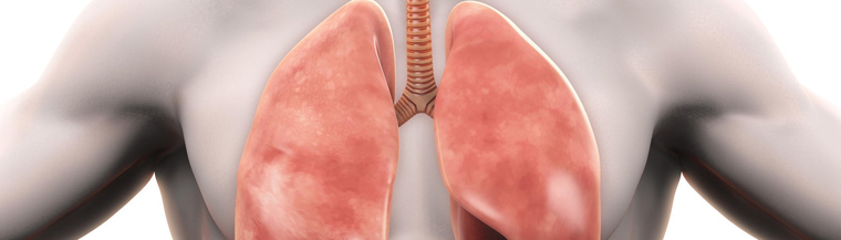 Alpha-1 antitrypsin deficiency is a common inherited genetic condition that can cause chronic lung and liver disease.
