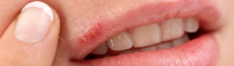 Cold sore on the outside of a mouth.