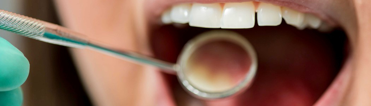 Regular dental check ups will help keep your mouth healthy and prevent cavities.