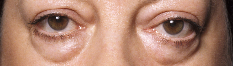 People with Graves' disease can develop bulging eyes