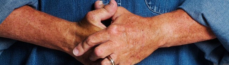 Rheumatoid arthritis usually affects the smaller joints.