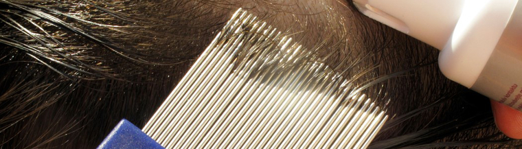 Removing head lice can be done using the conditioner and comb method.