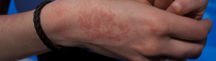 Heat rash is usually harmless, but can be itchy.