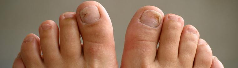 Tinea fungus on feet.
