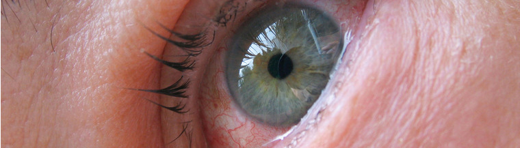 Trachoma is an eye infection