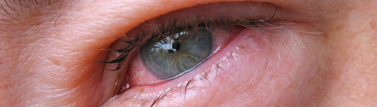 Uveitis usually causes a red painful eye.