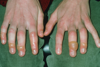 chilblains toes before after的圖片搜尋結果