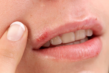 What Your Lips Say About Your Health - Dry Lips, Canker Sores, and ...