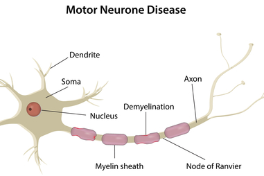 motor neurone disease mnd healthdirect