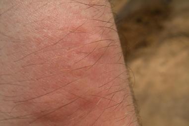 Hives healthdirect