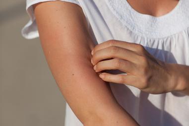 Itchy skin | healthdirect