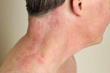 Rashes | Associates In Dermatology