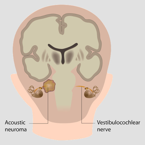 An acoustic neuroma grows in the eighth cranial nerve.