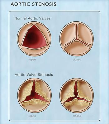 Aortic Stenosis Healthdirect