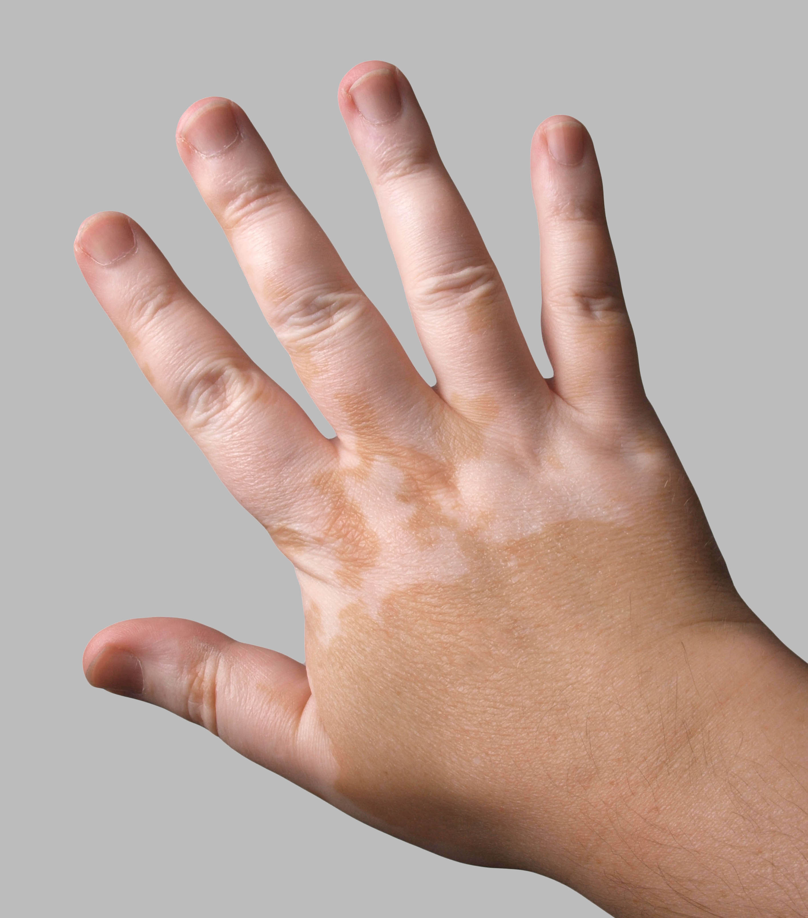 Vitiligo Healthdirect