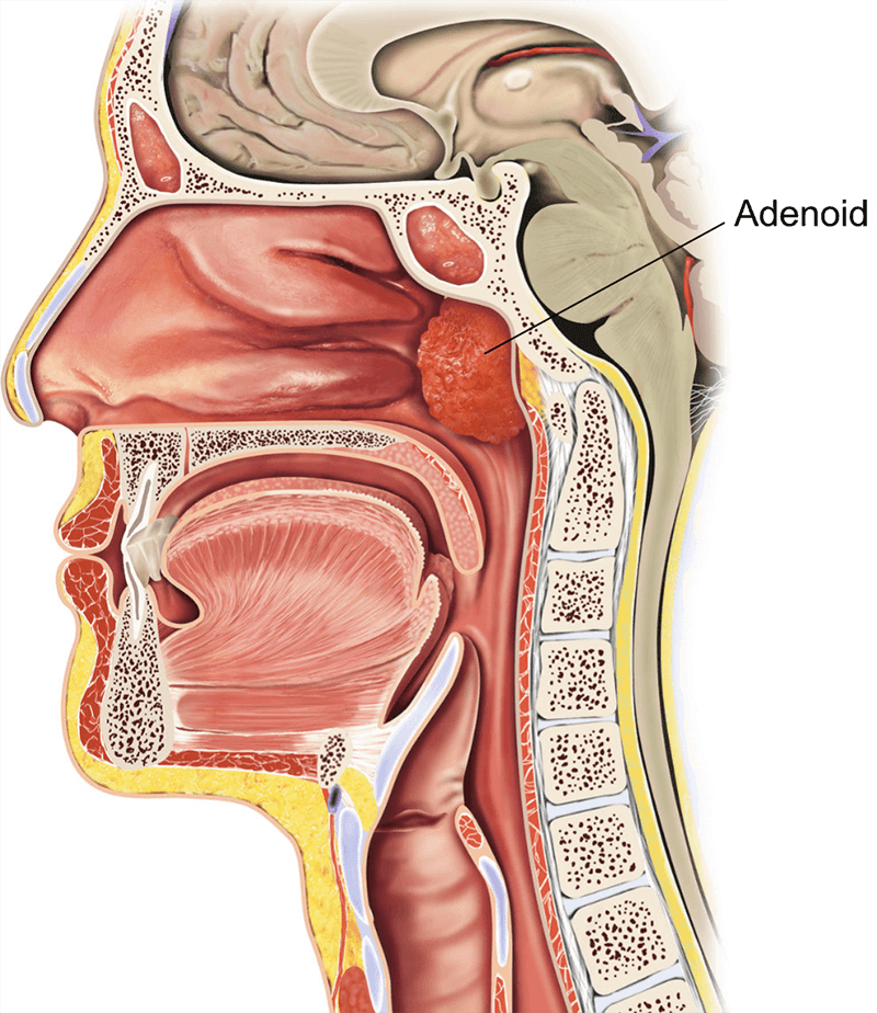 Adeno Tonsillectomy Child Healthdirect