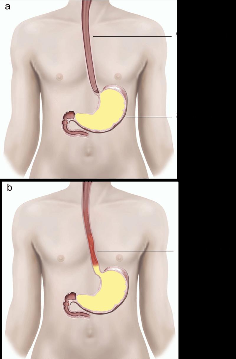 Anti-reflux surgery   healthdirect