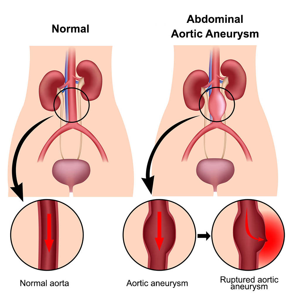 Aortic Aneurysm Healthdirect