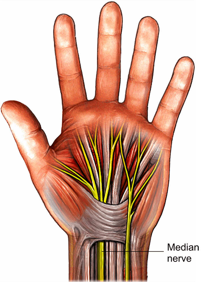 Carpal Tunnel Release Healthdirect