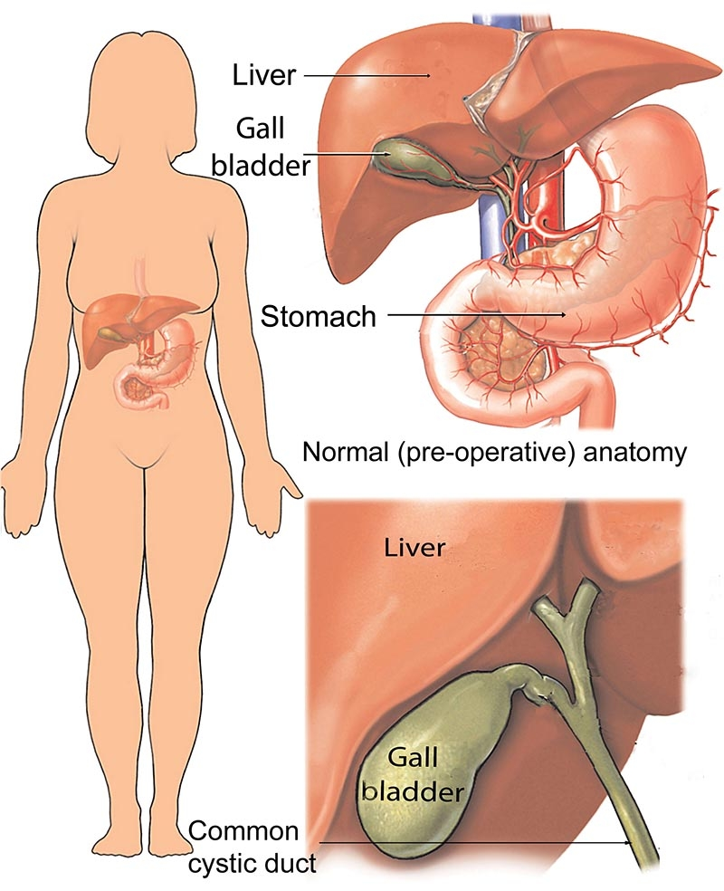 Cholecystectomy Gall Bladder Removal Healthdirect