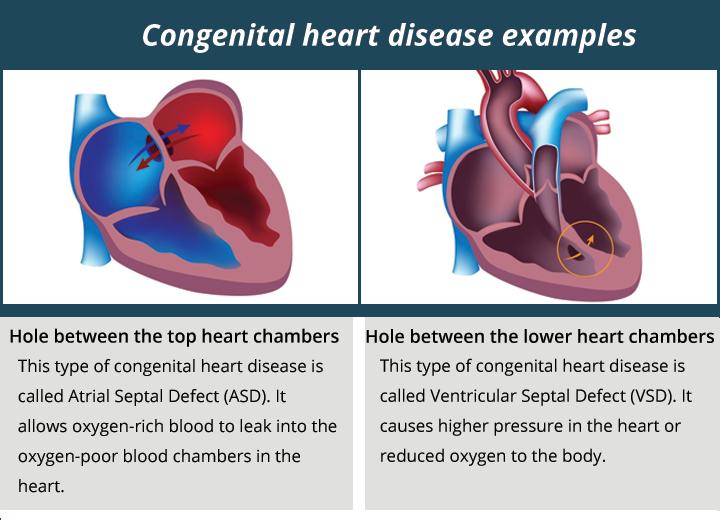 congenital heart disease examples