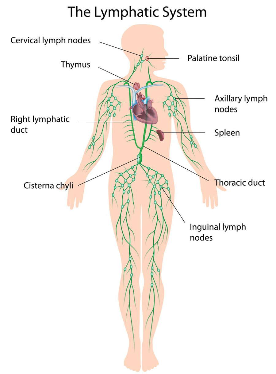aggressive cancer of the lymph nodes