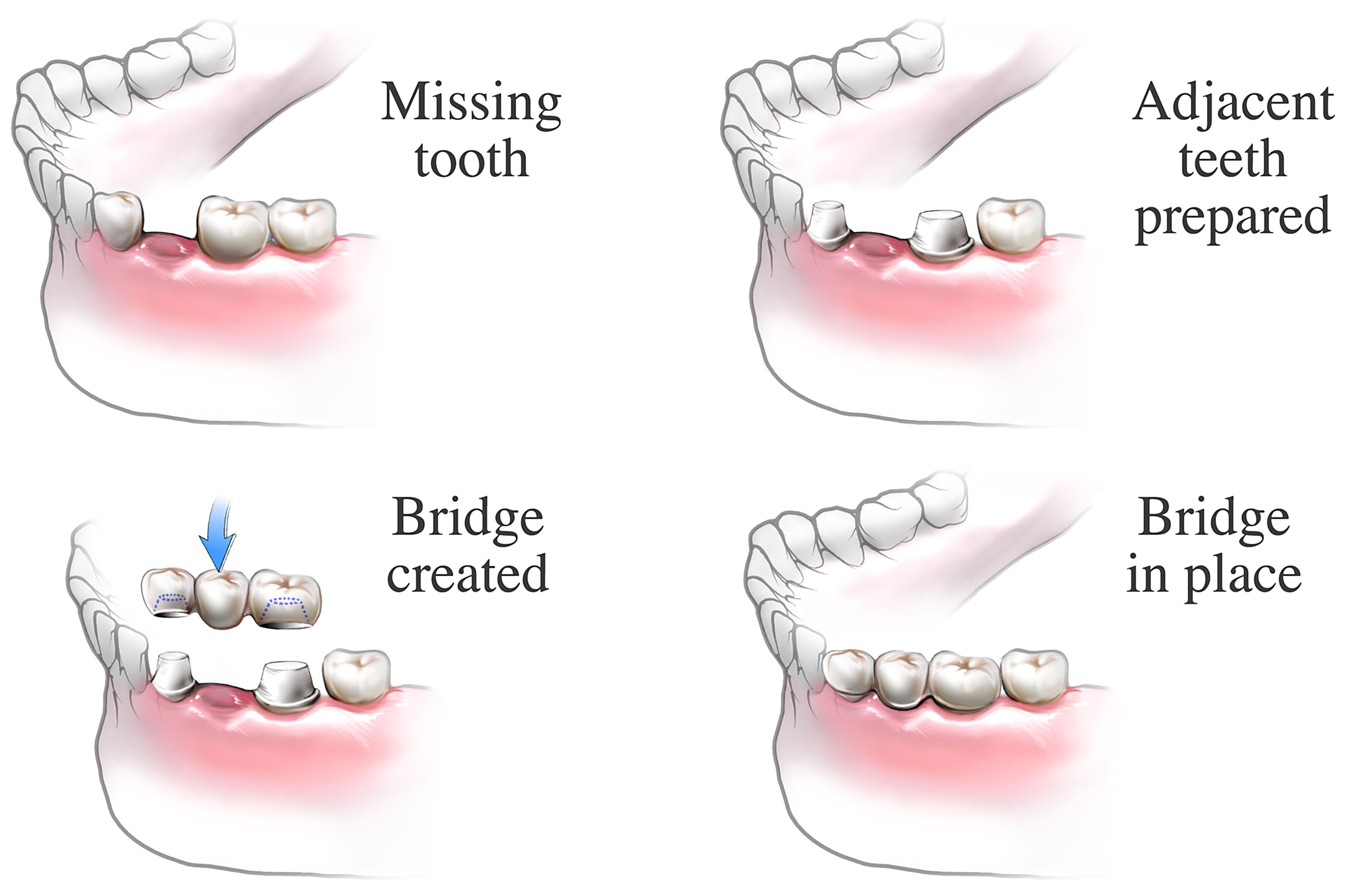 Dental bridge procedure | healthdirect