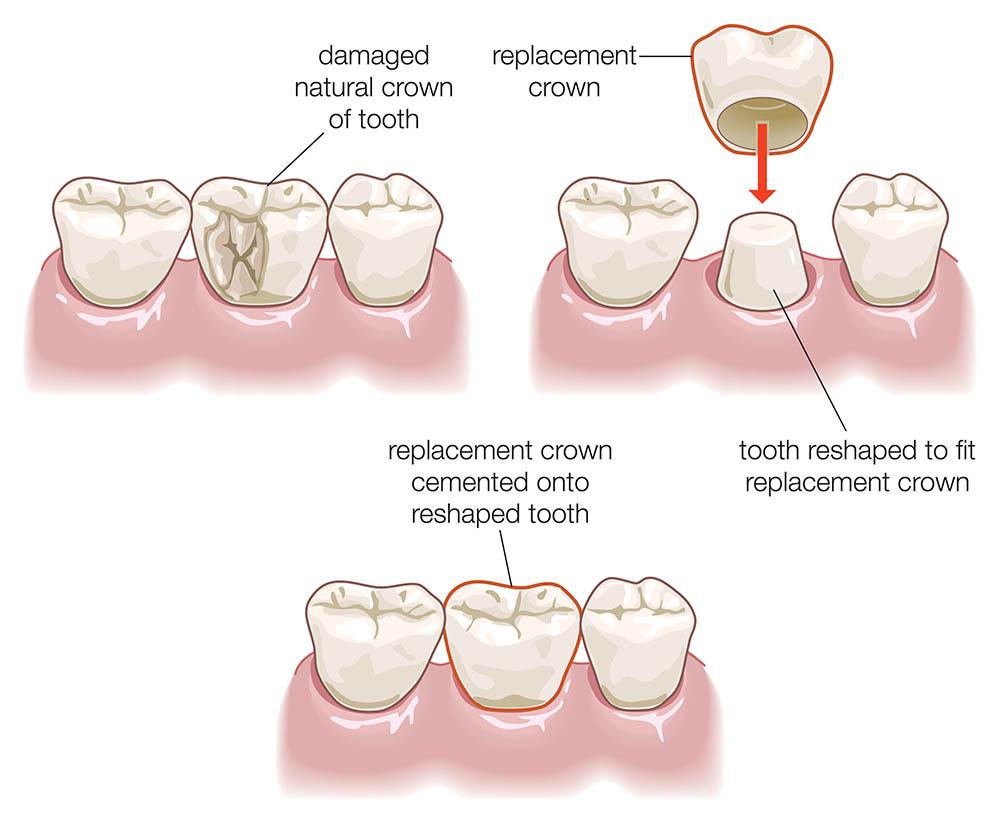 Dental crown procedure | healthdirect