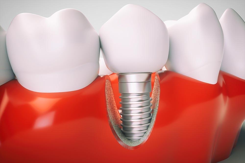 Dental implant procedure   healthdirect
