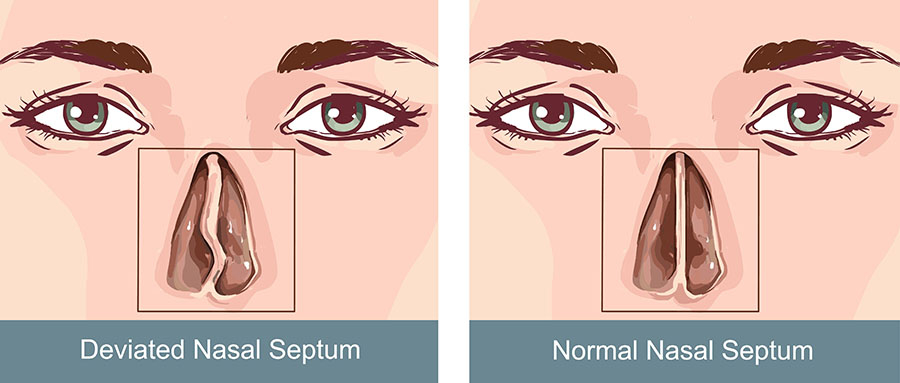 Deviated septum | healthdirect