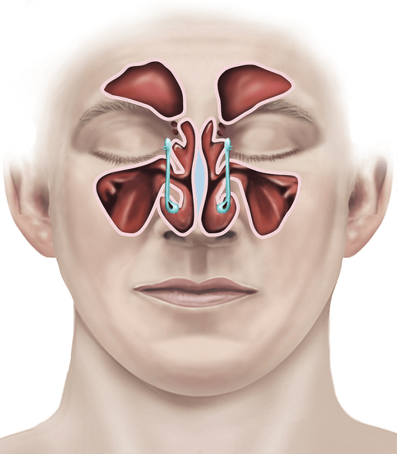 endoscopic sinus surgery illustration c61add - How Much Does It Cost To Get A Sinus Surgery