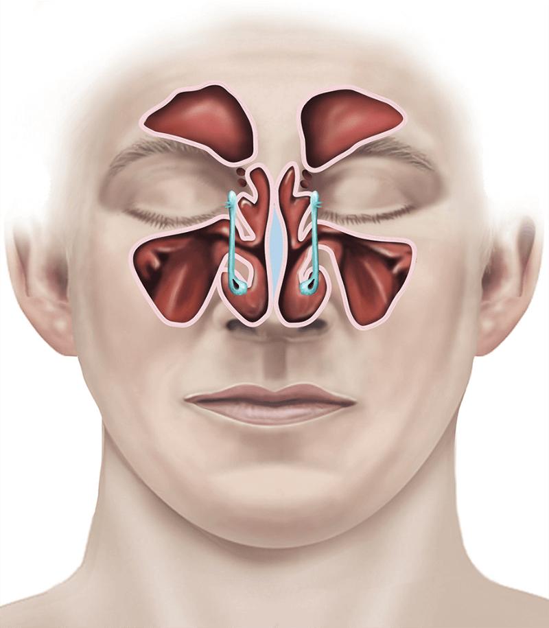 Endoscopic sinus surgery | healthdirect