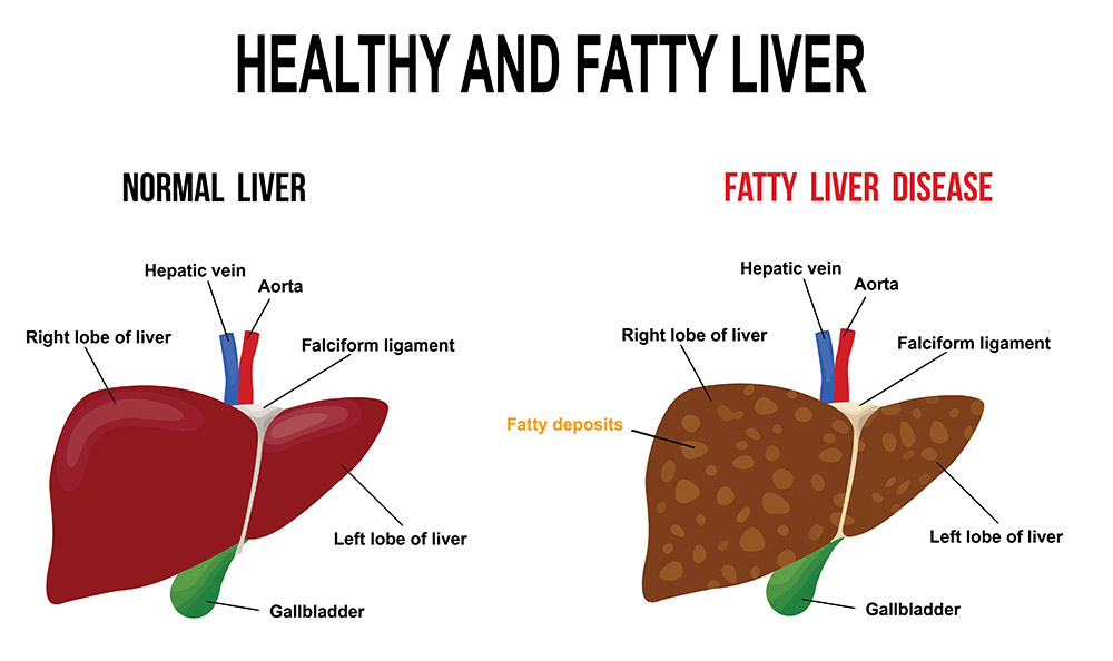 fatty liver disease illustration 1159ed - Fatty Liver – What You should Know