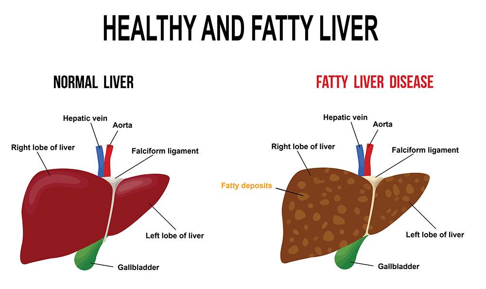 fatty liver зурган илэрцүүд