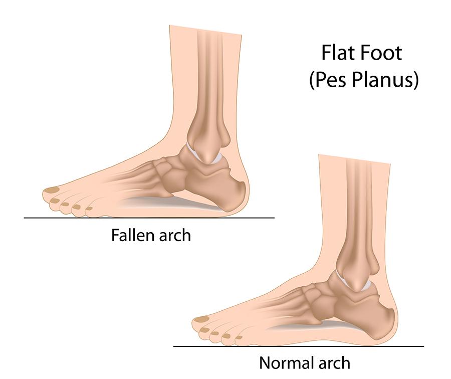 Flat feet (fallen arches)   healthdirect