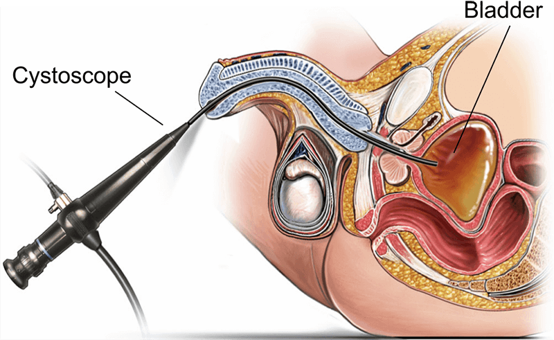 Flexible cystoscopy (male) | healthdirect