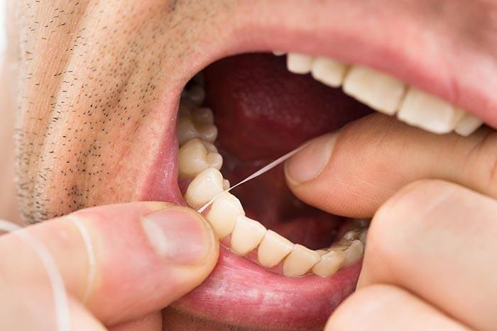 Teeth cleaning   healthdirect
