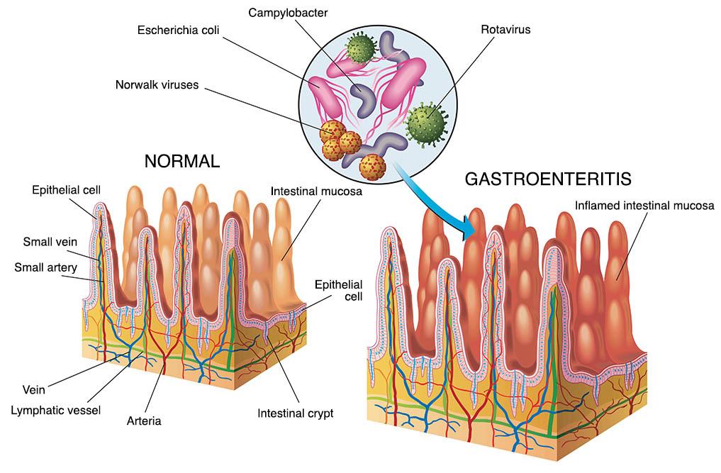 giardiasis gastroenteritis